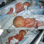triplets in nicu